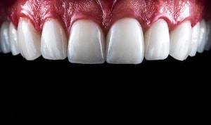 ציפויי חרסינה לשיניים
