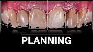 ציפוי חרסינה לשיניים תכנון