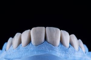 ציפוי למינייט לשיניים הדמיה