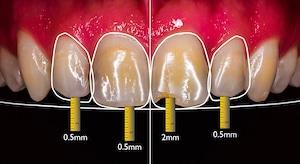 ציפוי למינייט לשיניים תוכנית