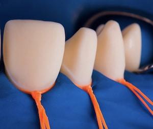 ציפוי שיניים למינייט הדבקה