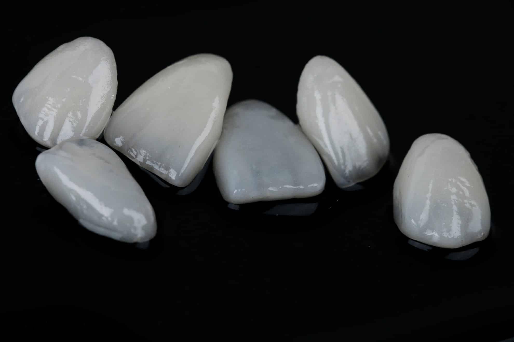 ציפוי חרסינה לשיניים יתרונות וחסרונות 2