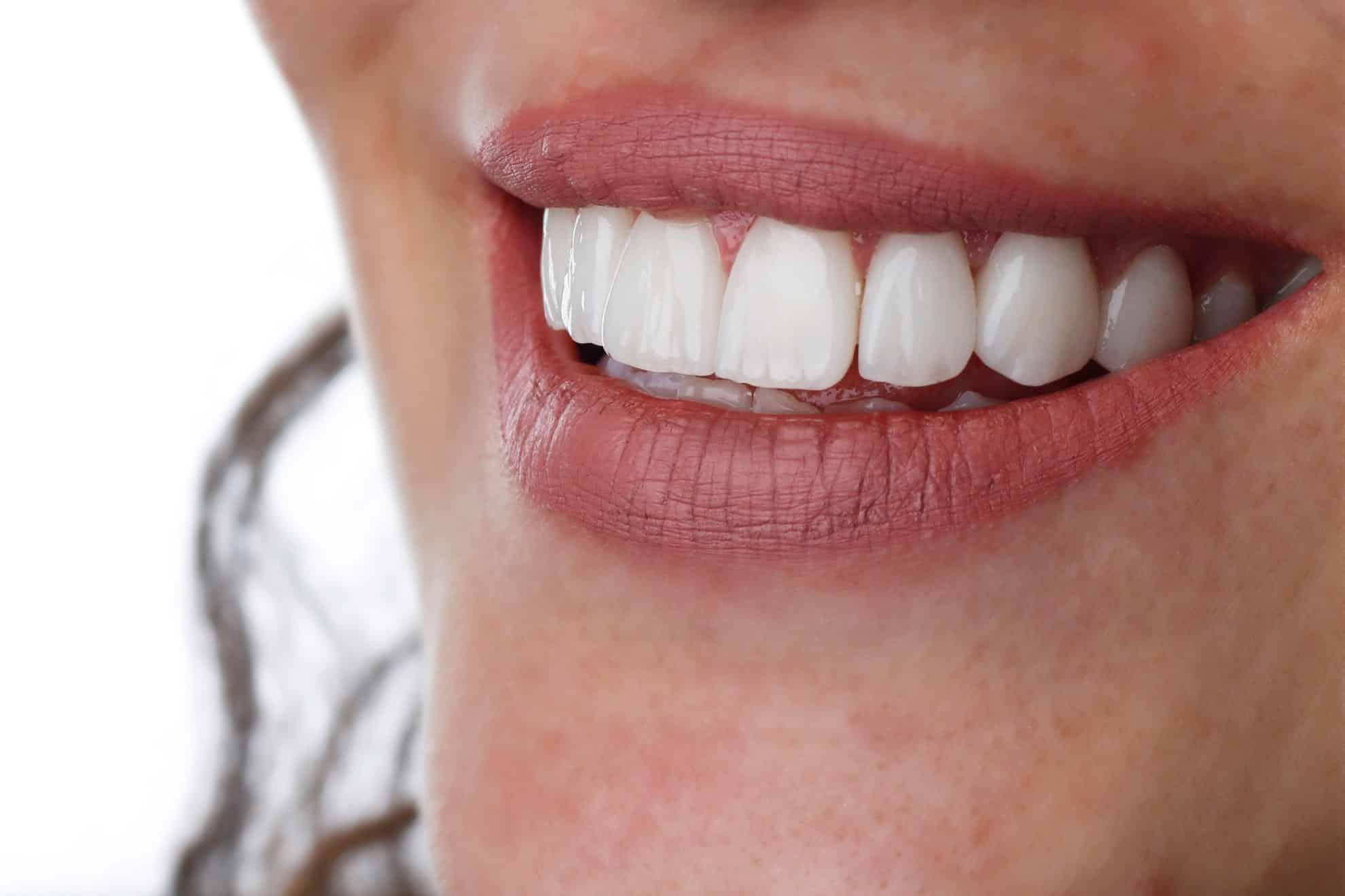 ציפוי חרסינה לשיניים יתרונות וחסרונות
