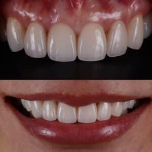 ציפוי שיניים מזירקוניה