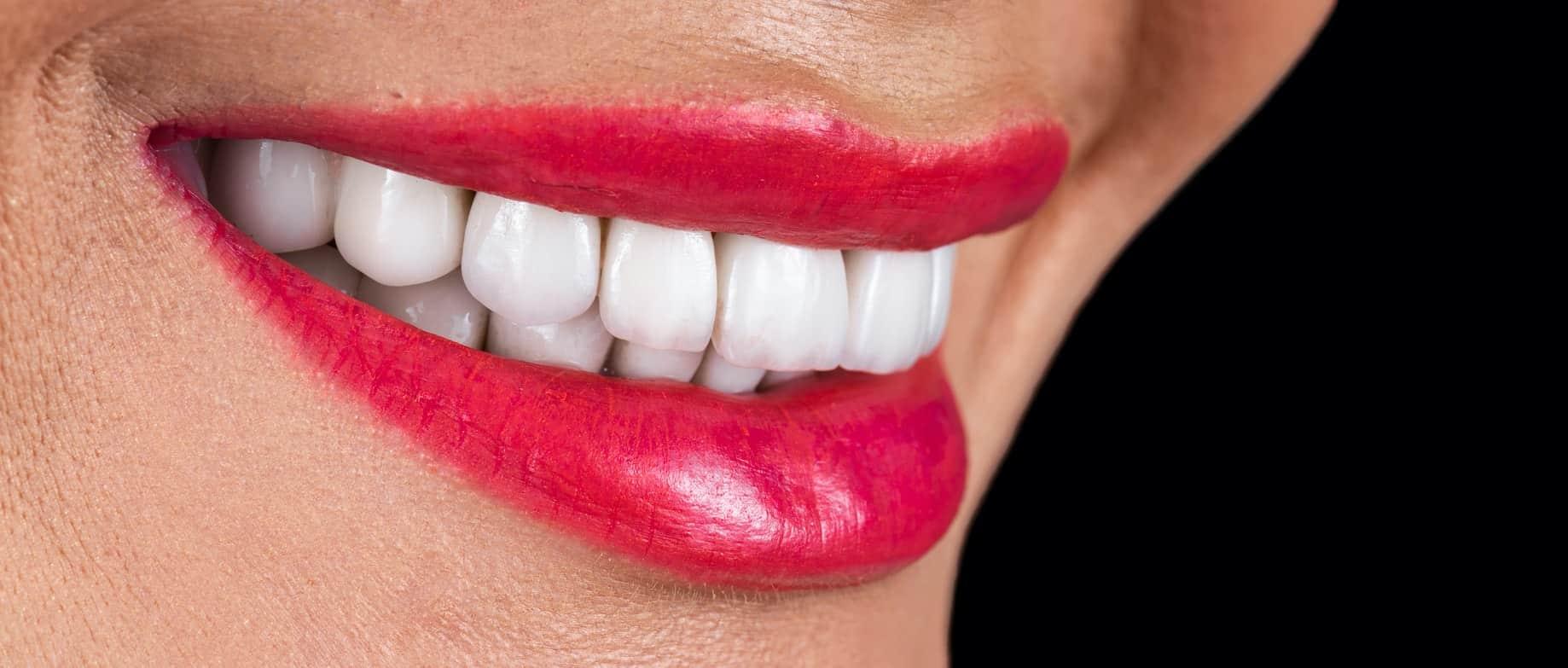 חסרונות של ציפוי שיניים קומפוזיט