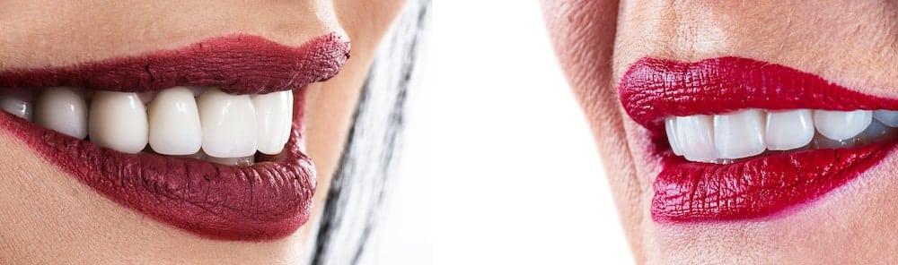 ציפויי שיניים חרסינה וקומפוזיט