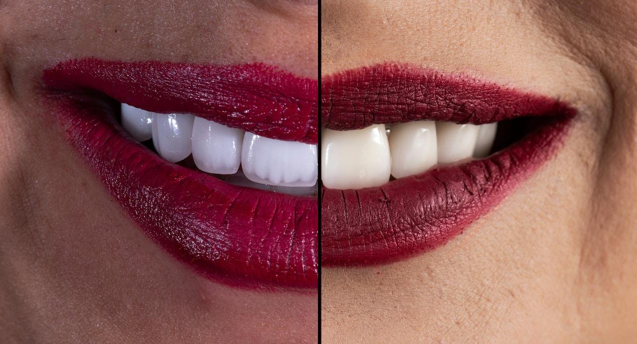 ציפוי שיניים חרסינה או קומפוזיט