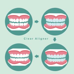 סגירת רווח בשיניים עם יישור שיניים שקוף