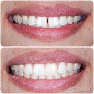 סגירת רווח בשיניים עם ציפוי קומפוזיט