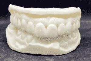 מודל שיניים תלת-ממדית