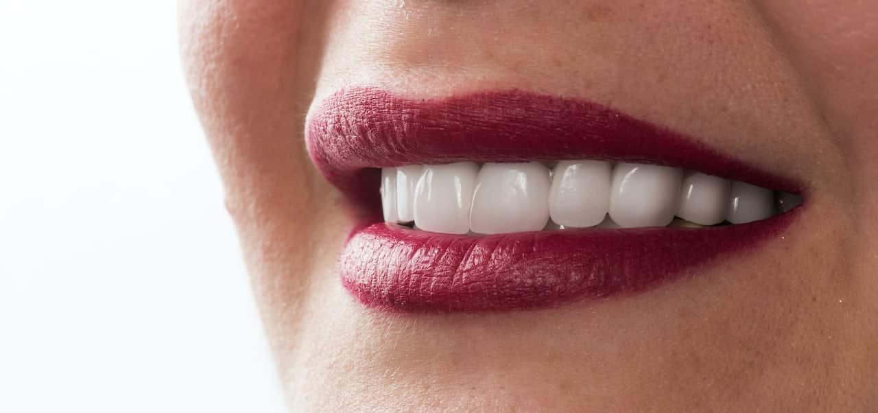ציפוי ננו קרמי לשיניים