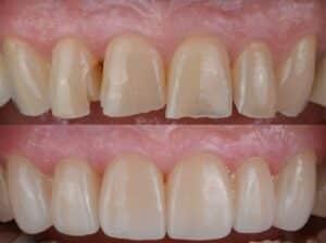 ציפוי שיניים ללא השחזה שיניים שחוקות