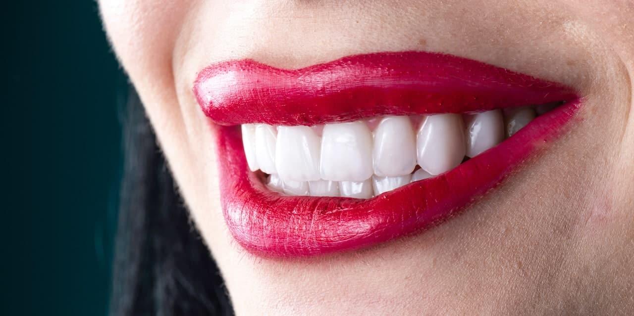 ציפוי שיניים ללא השחזה