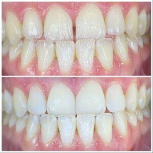 ציפוי שיניים רווחים בין השיניים