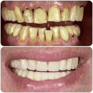 ציפוי חרסינה לשיניים עקומות