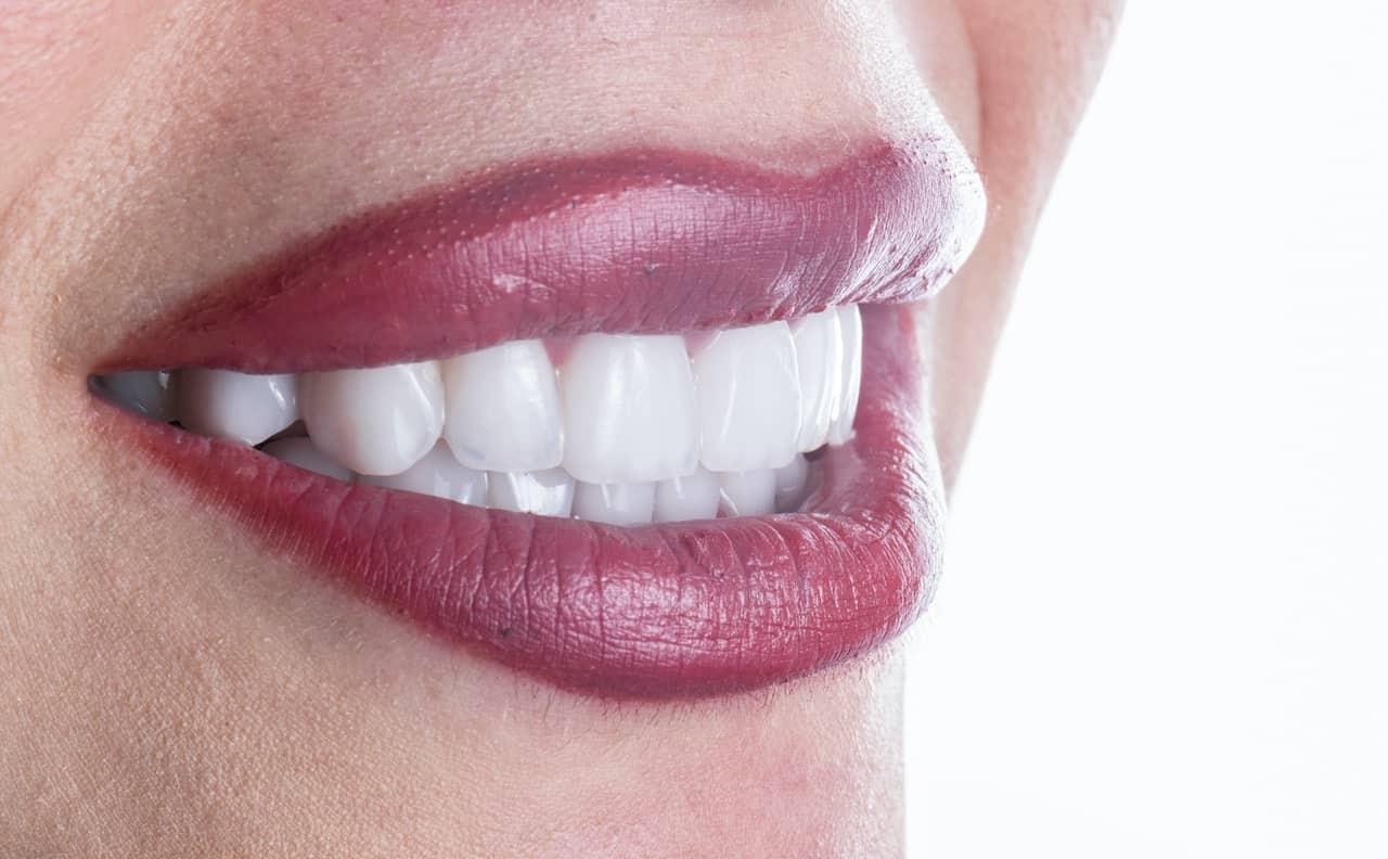 ציפוי שיניים לשיניים עקומות