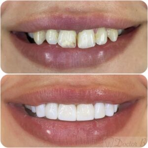 ציפוי שיניים קומפוזיט לשיניים עקומות