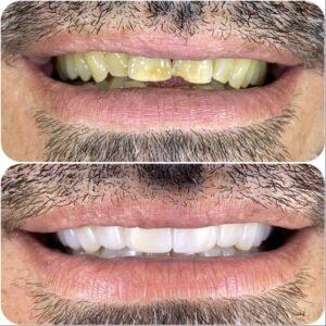 יישור שיניים מהיר באמצעות ציפוי שיניים קומפוזיט