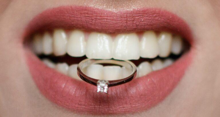 יישור שיניים מהיר לפני החתונה